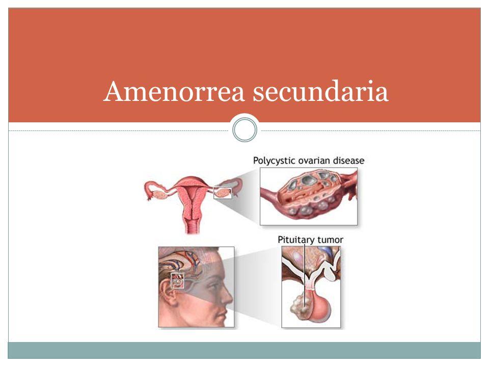 Amenorrea secundaria