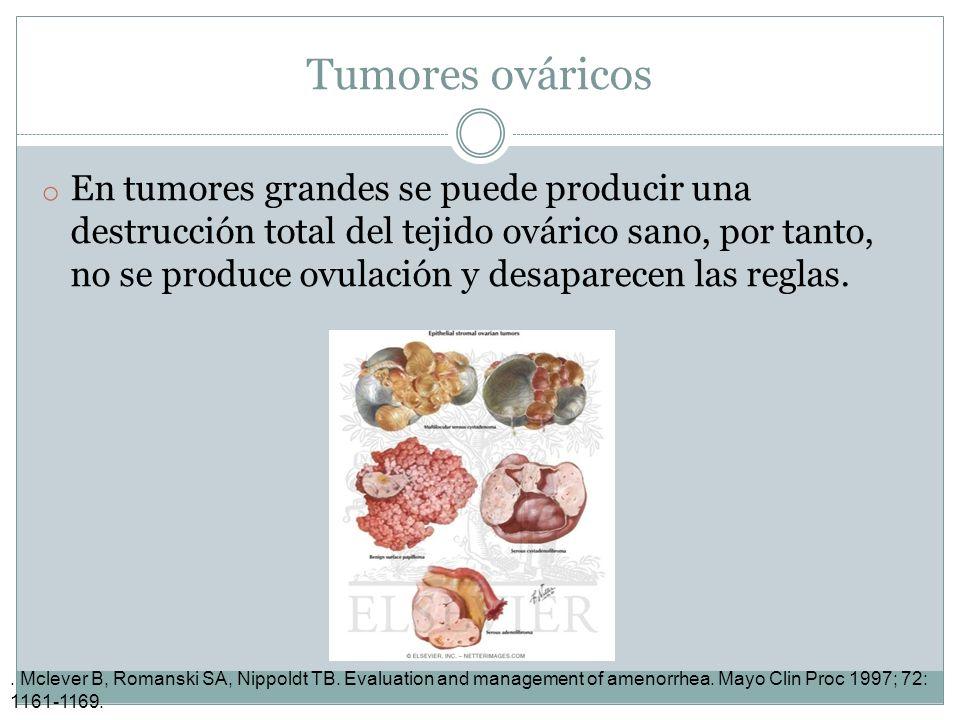 Tumores ováricos