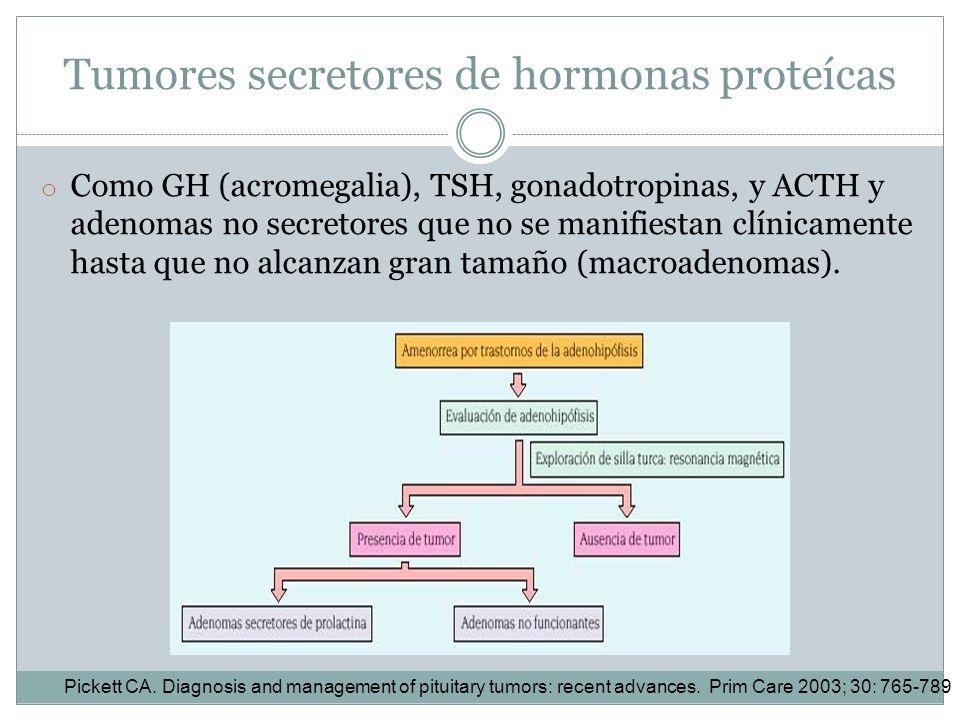 Tumores secretores de hormonas proteícas
