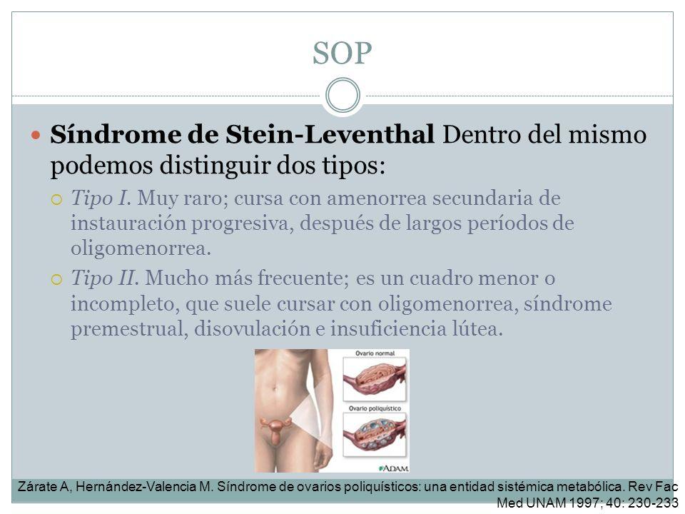 SOP Síndrome de Stein-Leventhal Dentro del mismo podemos distinguir dos tipos: