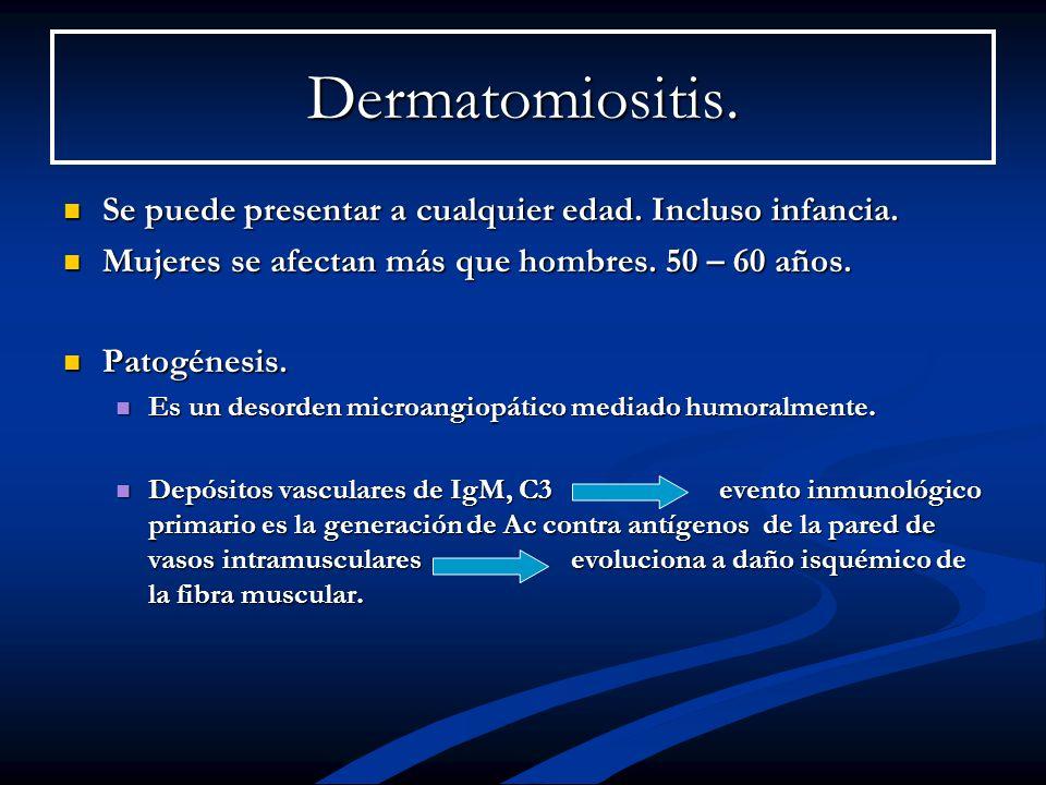 Dermatomiositis.Se puede presentar a cualquier edad. Incluso infancia. Mujeres se afectan más que hombres. 50 – 60 años.
