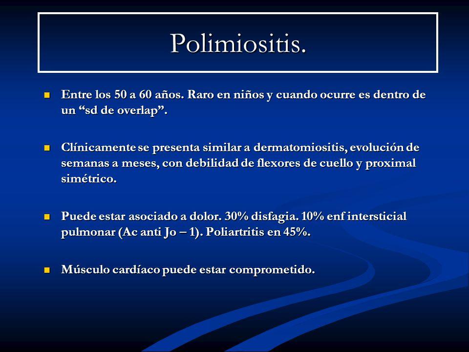 Polimiositis.Entre los 50 a 60 años. Raro en niños y cuando ocurre es dentro de un sd de overlap .