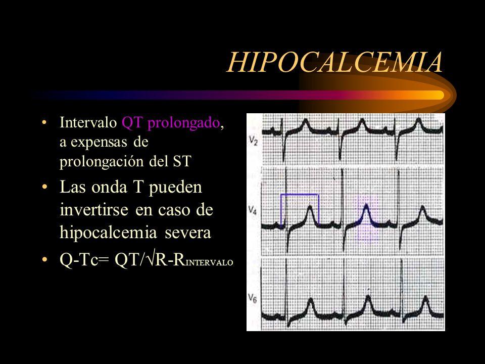 HIPOCALCEMIA Intervalo QT prolongado, a expensas de prolongación del ST. Las onda T pueden invertirse en caso de hipocalcemia severa.