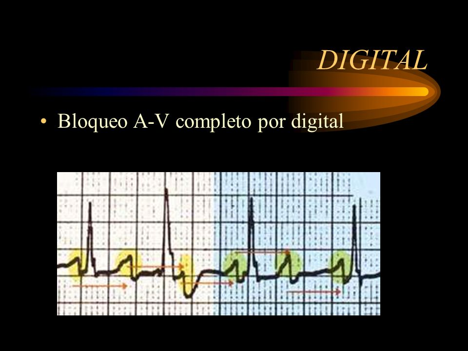 DIGITAL Bloqueo A-V completo por digital