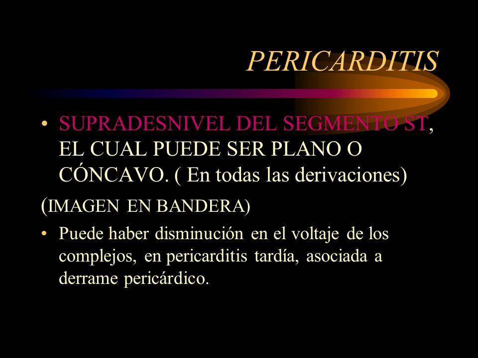 PERICARDITIS SUPRADESNIVEL DEL SEGMENTO ST, EL CUAL PUEDE SER PLANO O CÓNCAVO. ( En todas las derivaciones)