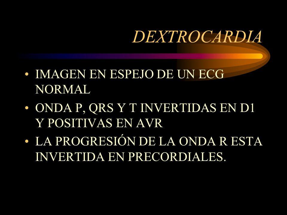 DEXTROCARDIA IMAGEN EN ESPEJO DE UN ECG NORMAL