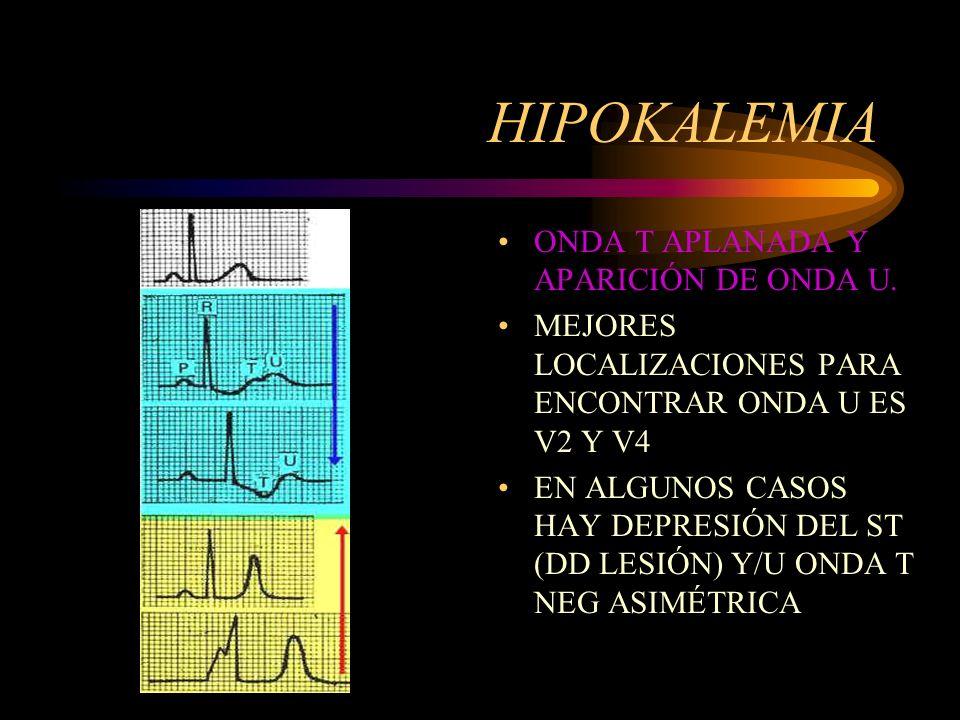 HIPOKALEMIA ONDA T APLANADA Y APARICIÓN DE ONDA U.
