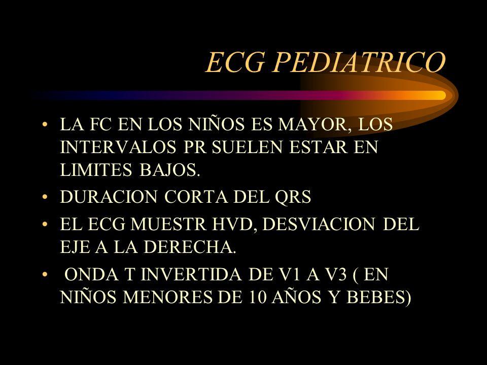 ECG PEDIATRICOLA FC EN LOS NIÑOS ES MAYOR, LOS INTERVALOS PR SUELEN ESTAR EN LIMITES BAJOS. DURACION CORTA DEL QRS.
