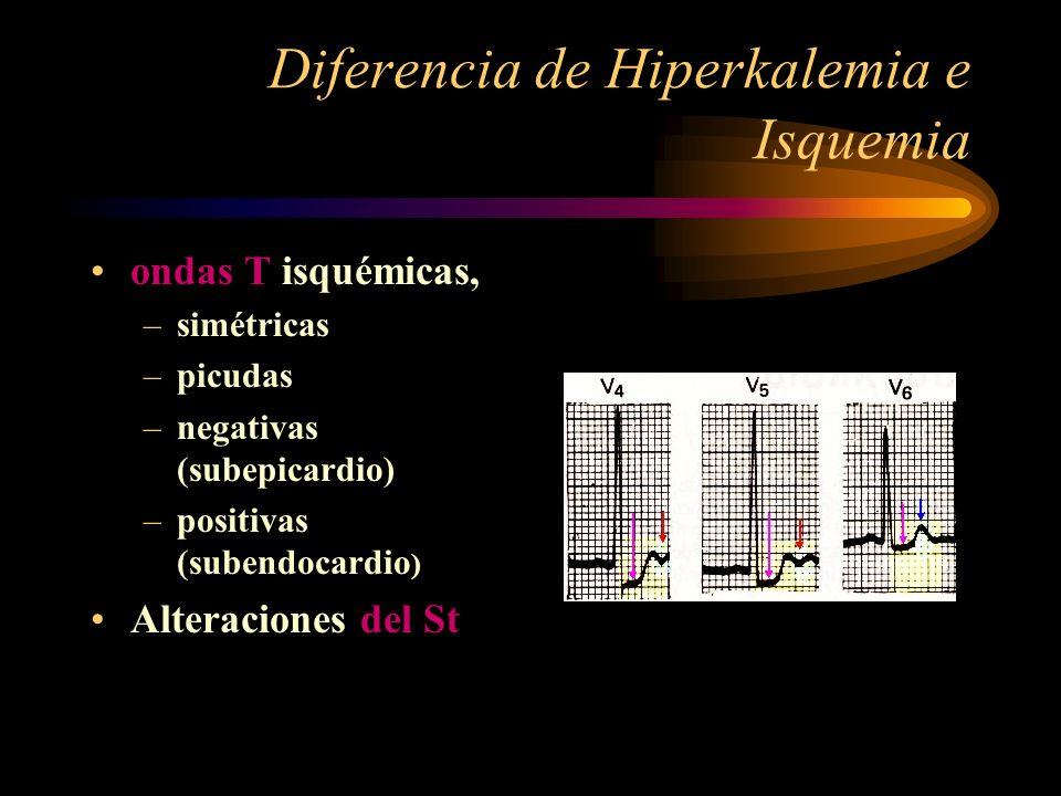 Diferencia de Hiperkalemia e Isquemia