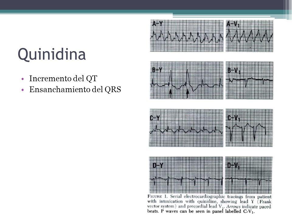 Quinidina Incremento del QT Ensanchamiento del QRS