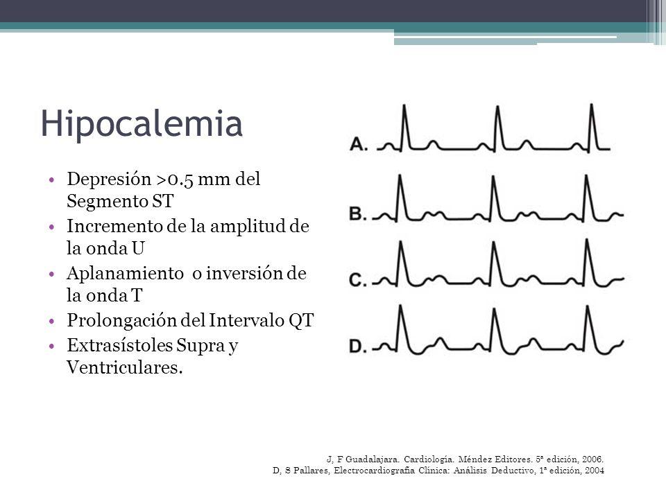 Hipocalemia Depresión >0.5 mm del Segmento ST