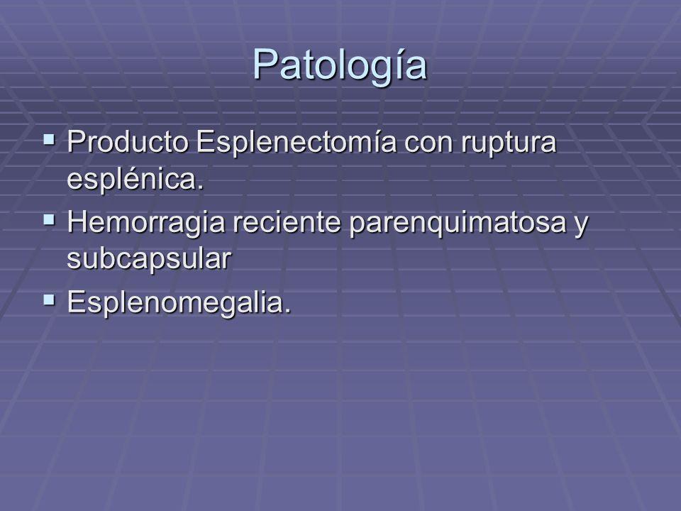 Patología Producto Esplenectomía con ruptura esplénica.