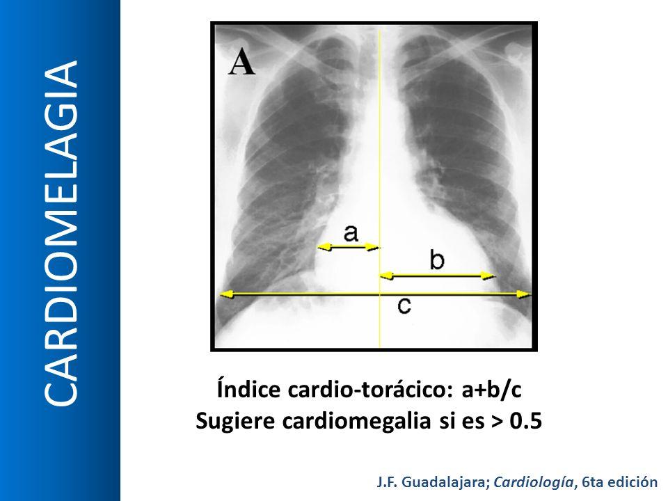 Índice cardio-torácico: a+b/c Sugiere cardiomegalia si es > 0.5