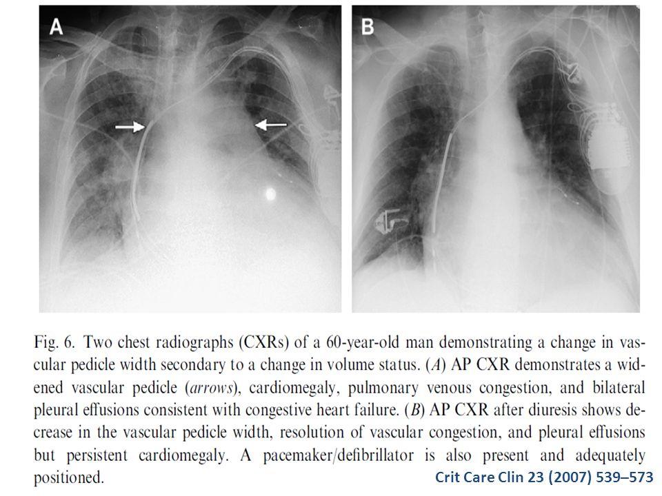 Crit Care Clin 23 (2007) 539–573