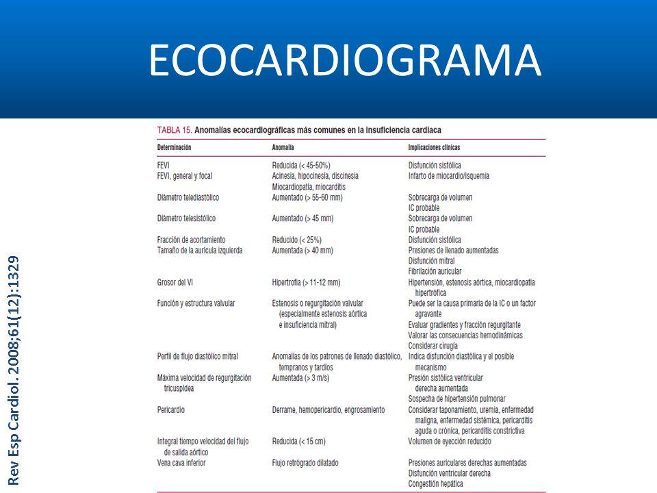 ECOCARDIOGRAMA Rev Esp Cardiol. 2008;61(12):1329