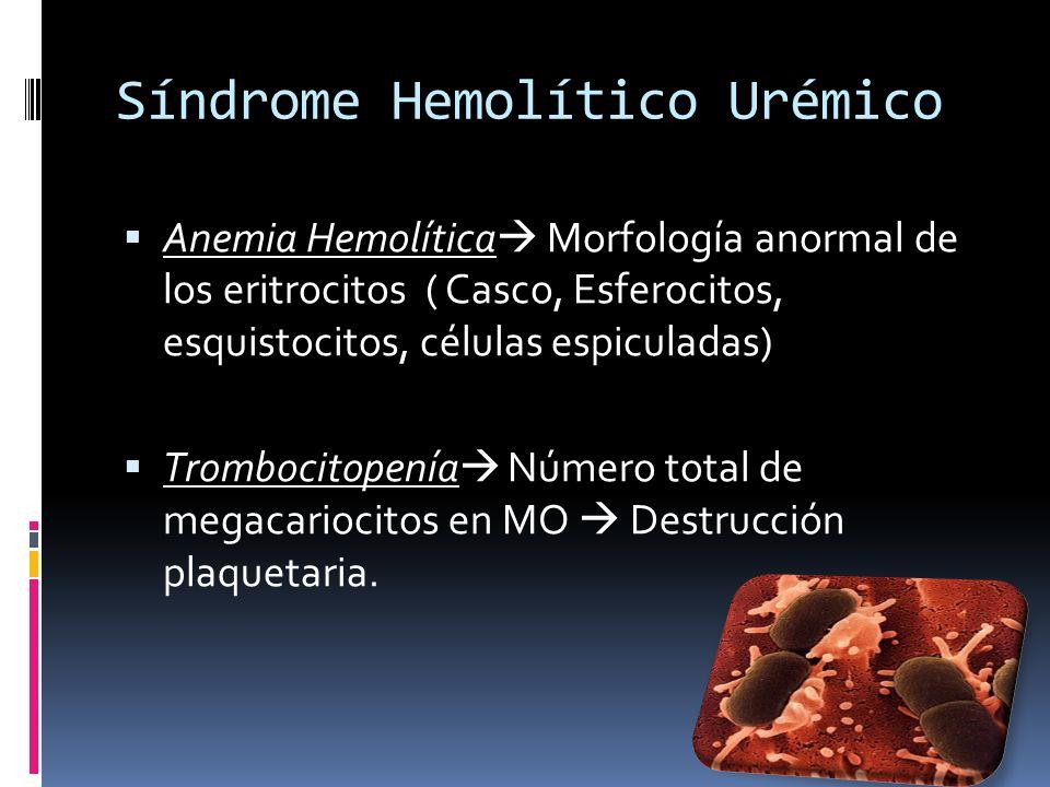 Síndrome Hemolítico Urémico