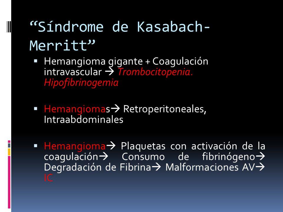Síndrome de Kasabach- Merritt