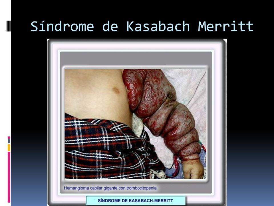Síndrome de Kasabach Merritt