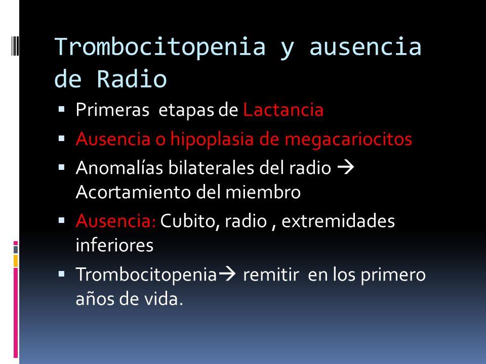 Trombocitopenia y ausencia de Radio