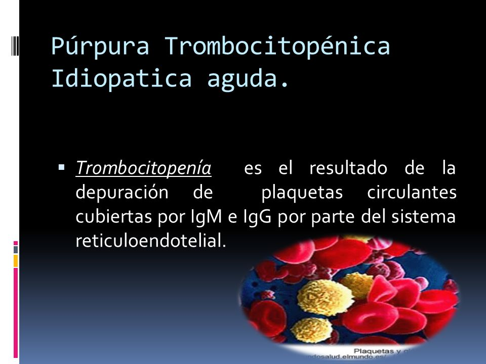 Púrpura Trombocitopénica Idiopatica aguda.