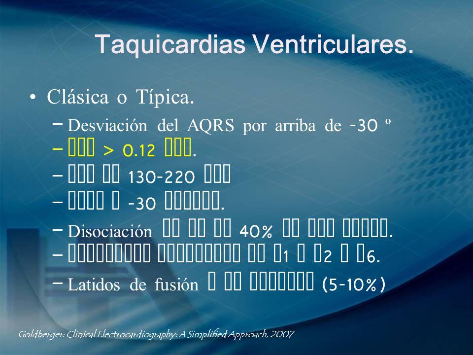 Taquicardias Ventriculares.