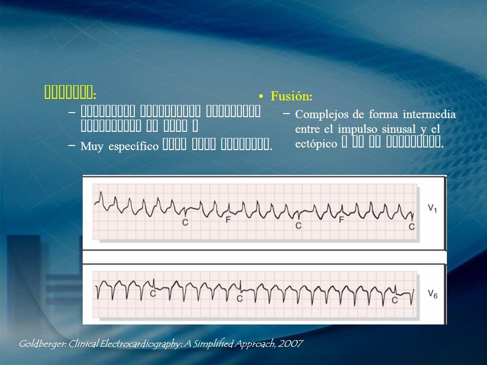 Captura: Fusión: Complejos prematuros estrechos precedidos de onda P