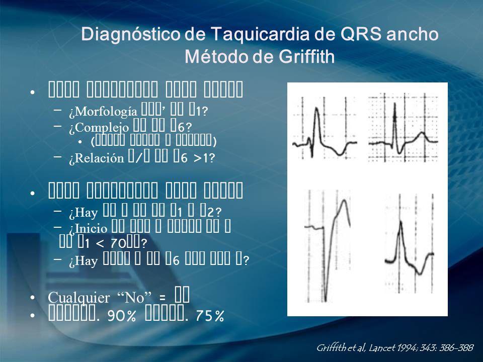 Diagnóstico de Taquicardia de QRS ancho Método de Griffith