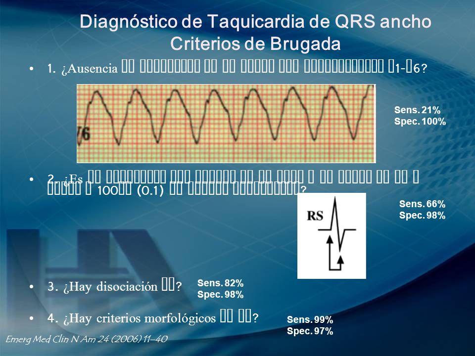Diagnóstico de Taquicardia de QRS ancho Criterios de Brugada
