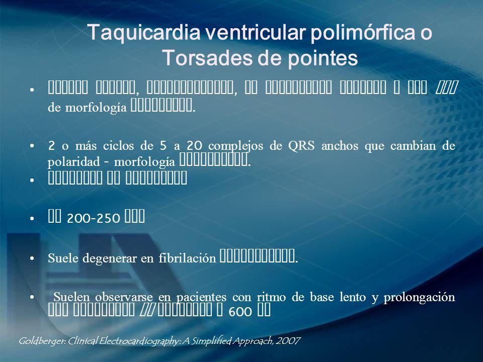 Taquicardia ventricular polimórfica o Torsades de pointes