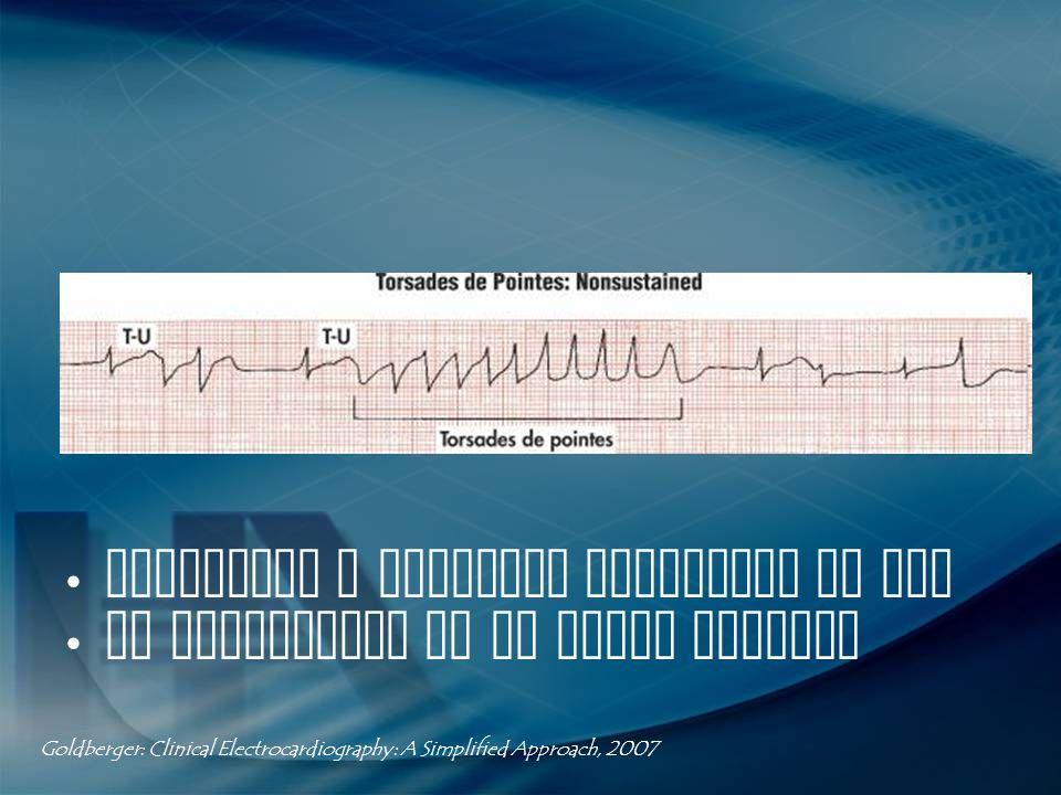 Polaridad y amplitud cambiante de QRS