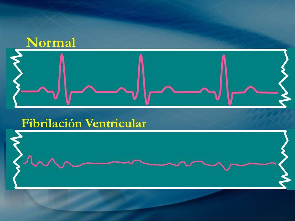 Normal Fibrilación Ventricular