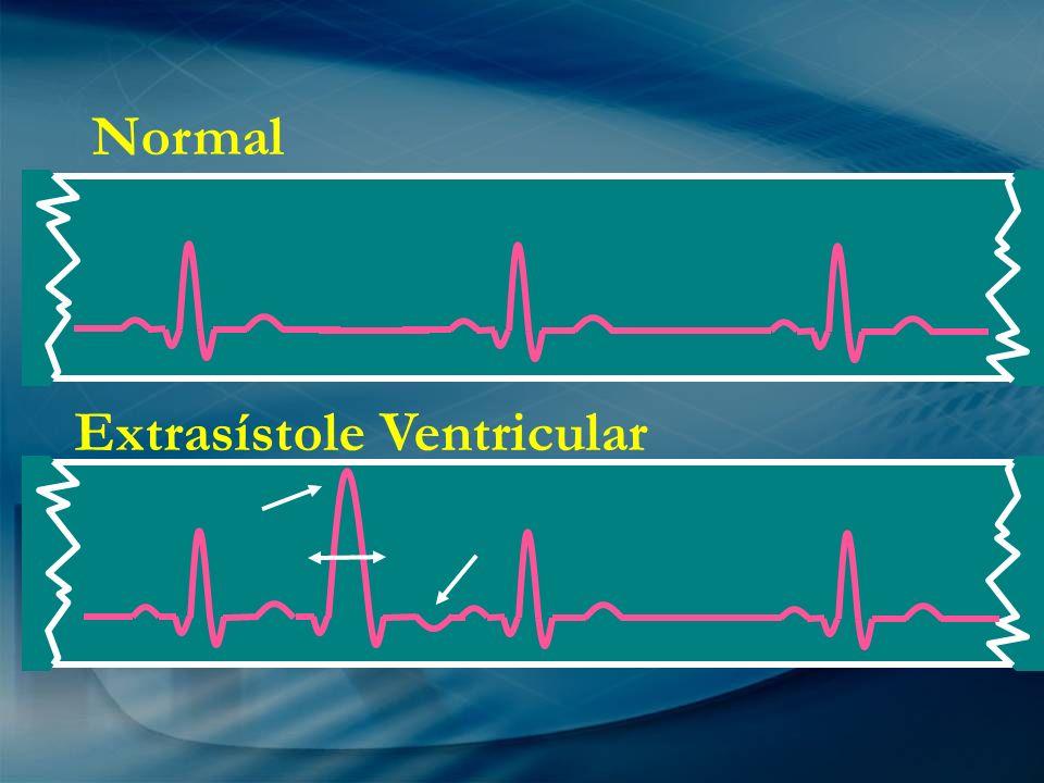 Normal Extrasístole Ventricular