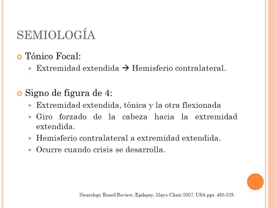 SEMIOLOGÍA Tónico Focal: Signo de figura de 4: