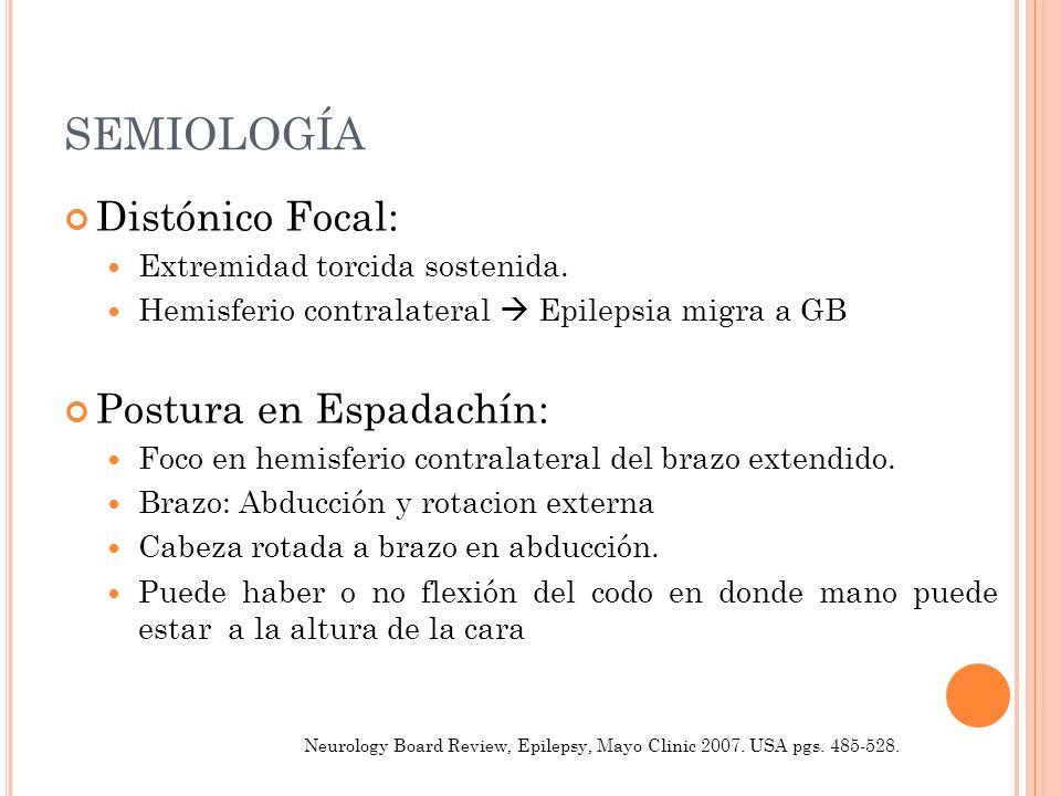 SEMIOLOGÍA Distónico Focal: Postura en Espadachín: