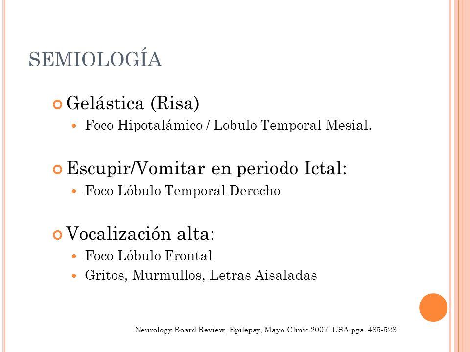 SEMIOLOGÍA Gelástica (Risa) Escupir/Vomitar en periodo Ictal: