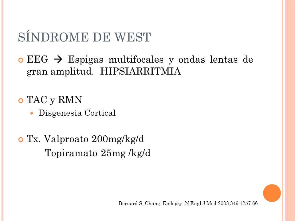 SÍNDROME DE WEST EEG  Espigas multifocales y ondas lentas de gran amplitud. HIPSIARRITMIA. TAC y RMN.