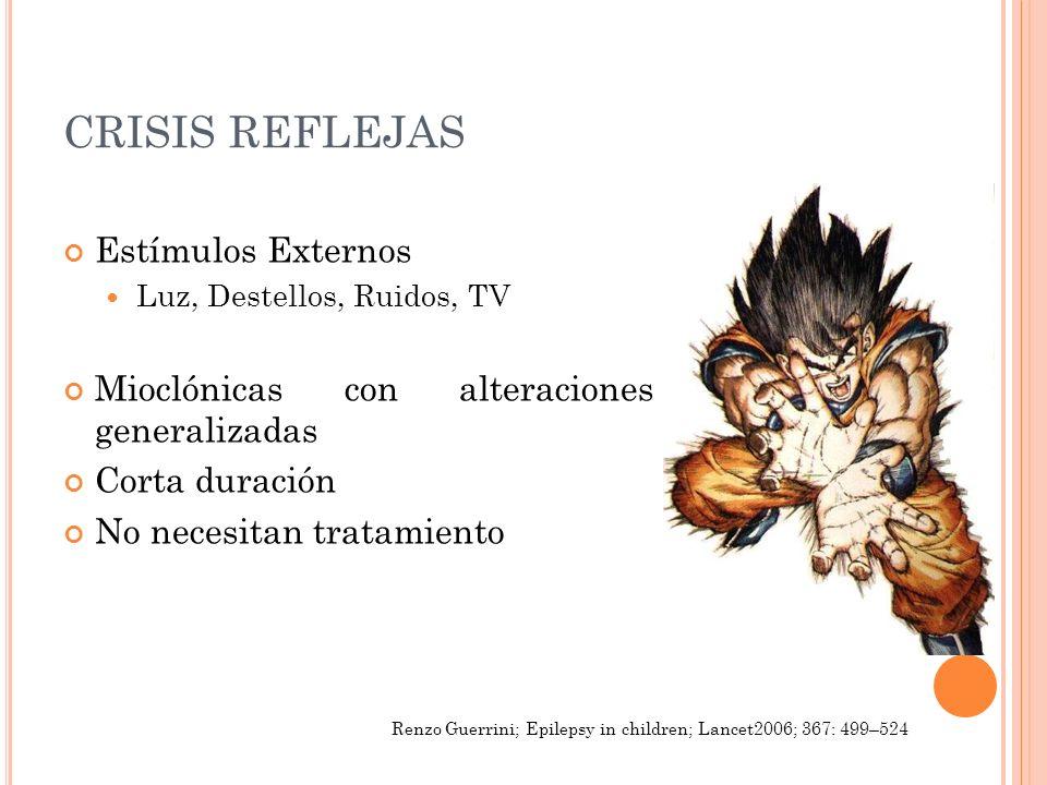 CRISIS REFLEJAS Estímulos Externos