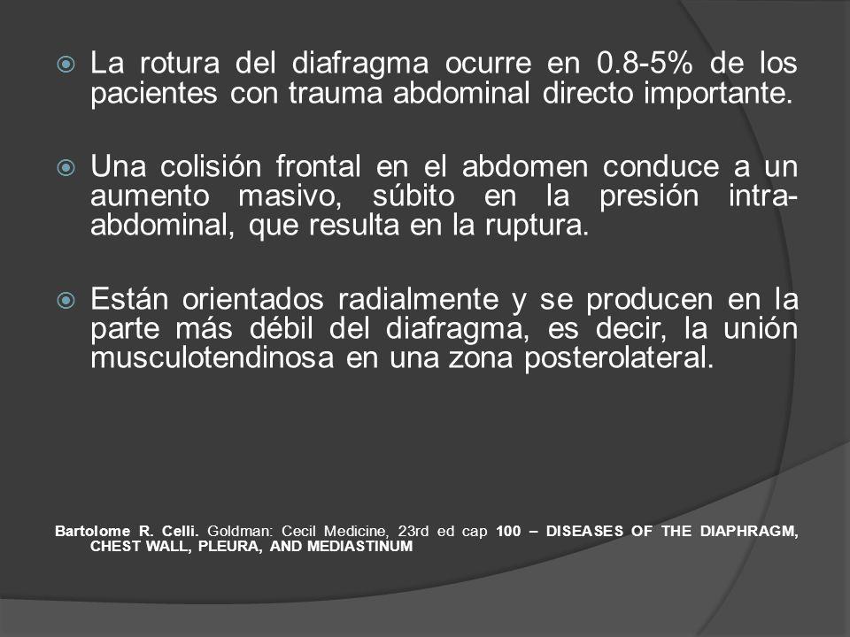 La rotura del diafragma ocurre en 0