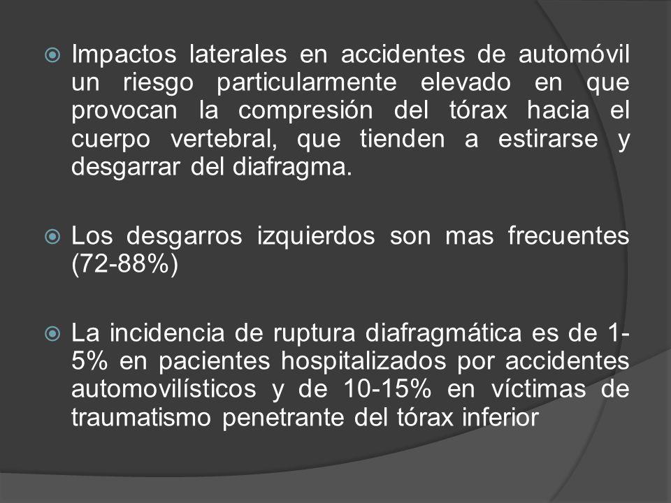 Impactos laterales en accidentes de automóvil un riesgo particularmente elevado en que provocan la compresión del tórax hacia el cuerpo vertebral, que tienden a estirarse y desgarrar del diafragma.