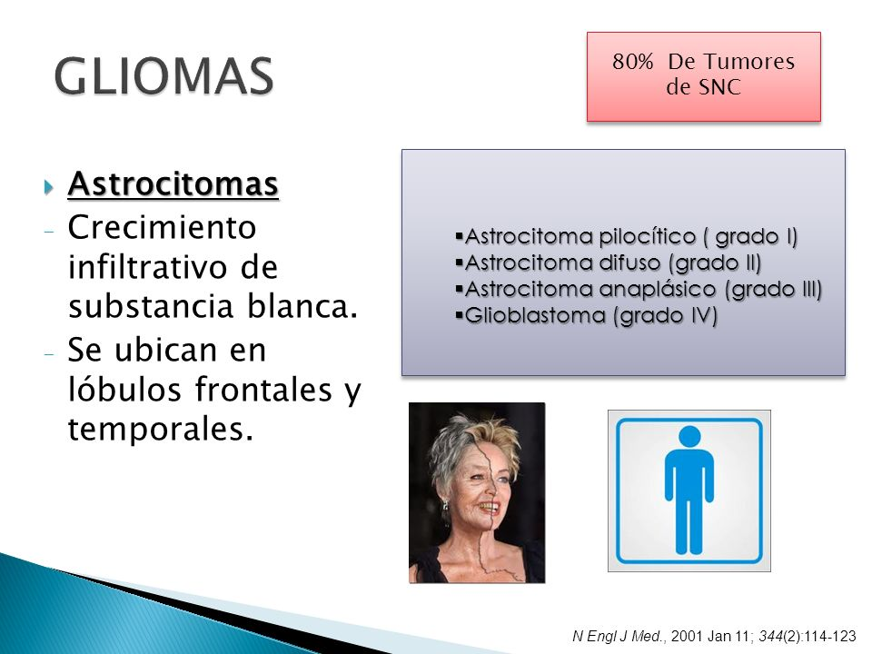 GLIOMAS Astrocitomas Crecimiento infiltrativo de substancia blanca.