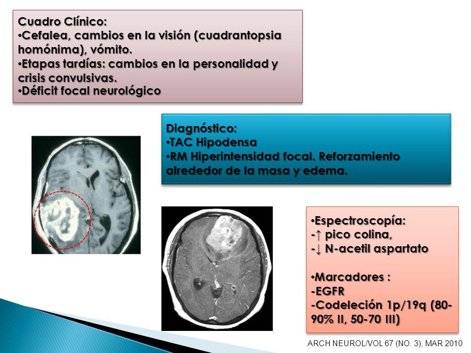 Cefalea, cambios en la visión (cuadrantopsia homónima), vómito.