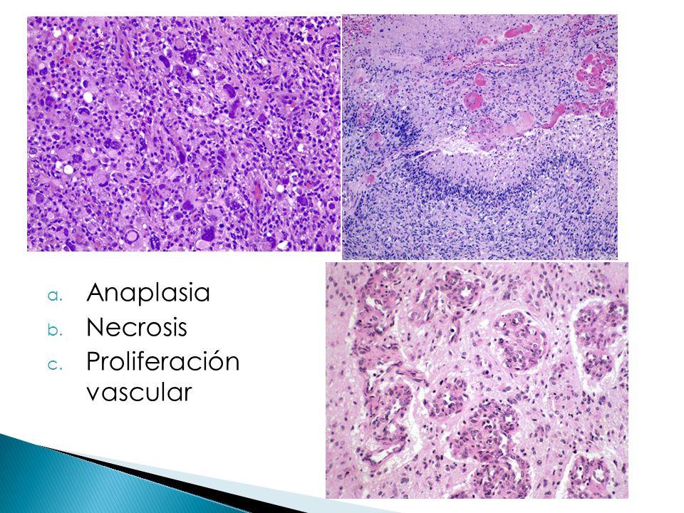 Anaplasia Necrosis Proliferación vascular