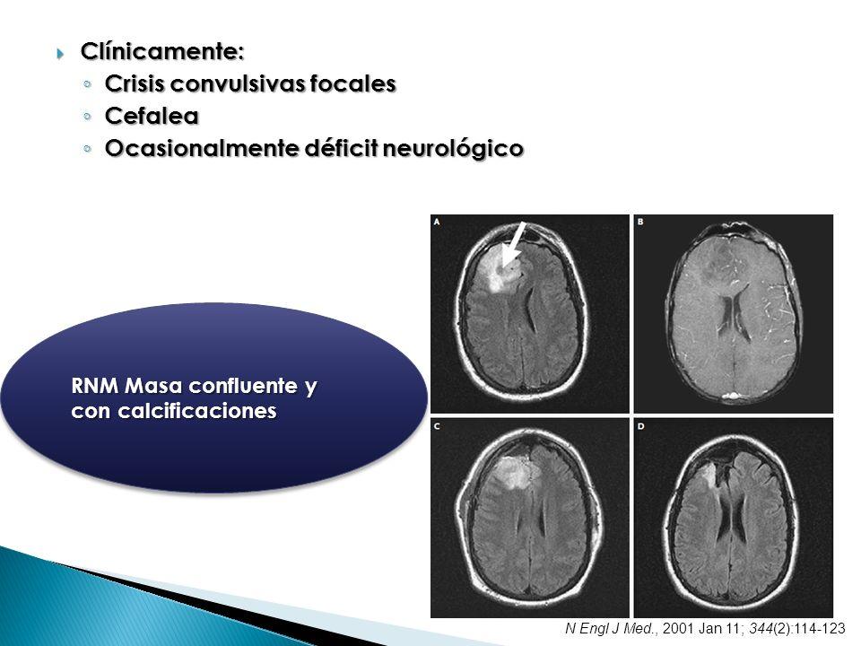 Crisis convulsivas focales Cefalea Ocasionalmente déficit neurológico