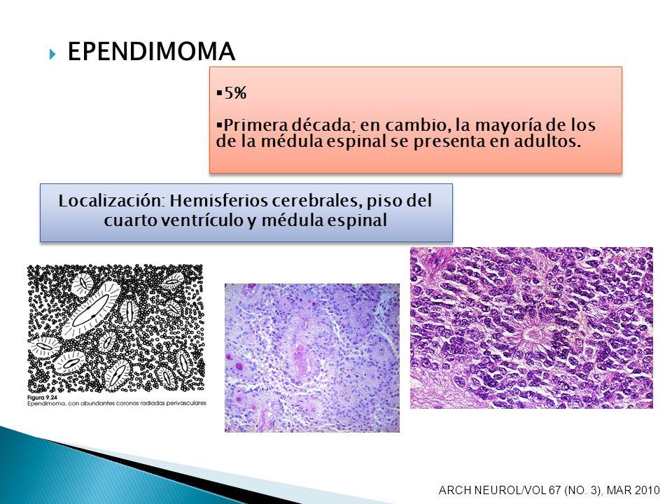 EPENDIMOMA 5% Primera década; en cambio, la mayoría de los de la médula espinal se presenta en adultos.