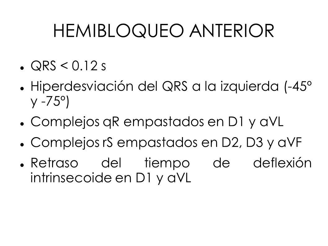 HEMIBLOQUEO ANTERIOR QRS < 0.12 s