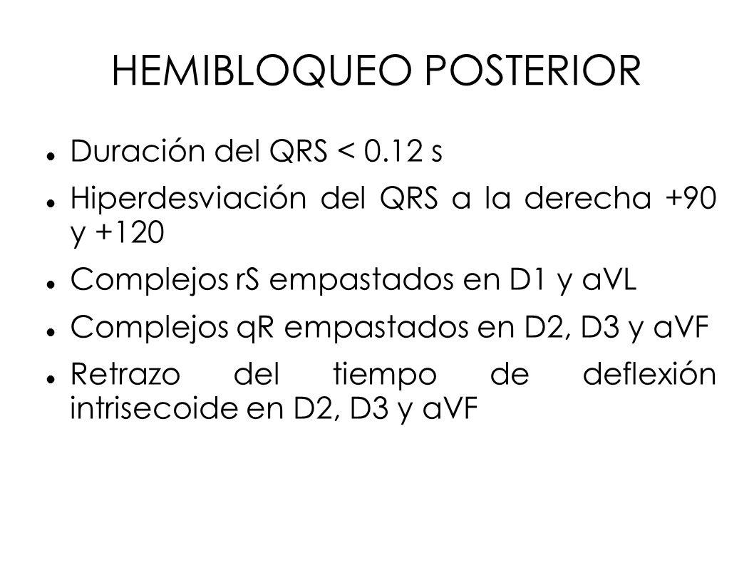 HEMIBLOQUEO POSTERIOR