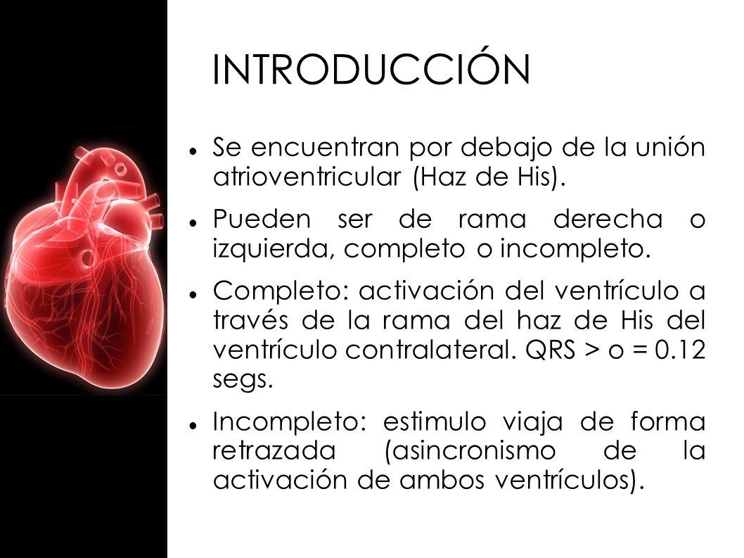 INTRODUCCIÓN Se encuentran por debajo de la unión atrioventricular (Haz de His). Pueden ser de rama derecha o izquierda, completo o incompleto.