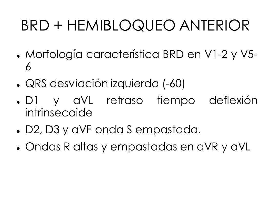 BRD + HEMIBLOQUEO ANTERIOR