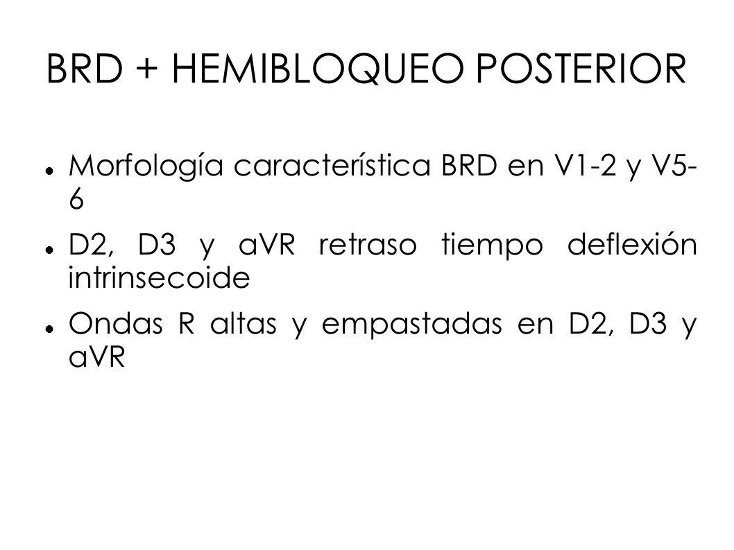 BRD + HEMIBLOQUEO POSTERIOR