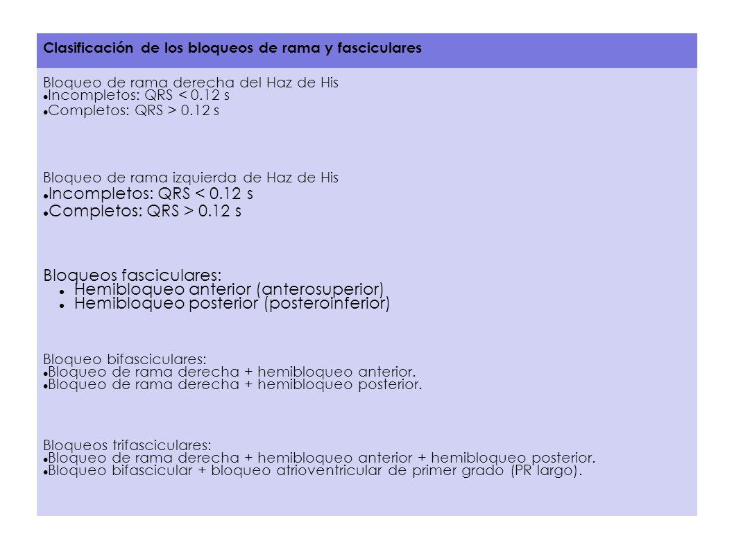 Bloqueos fasciculares: Hemibloqueo anterior (anterosuperior)